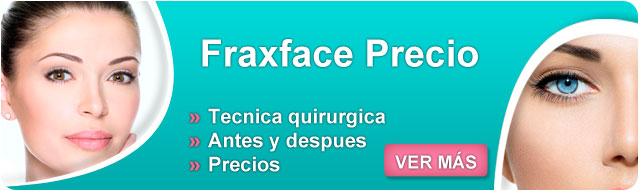 fraxface tratamiento, radiofrecuencia fraccionada precio, fraxface antes y despues, mascarillas para las arrugas dela cara, como prevenir las arrugas en la cara, como prevenir las arrugas dela cara,