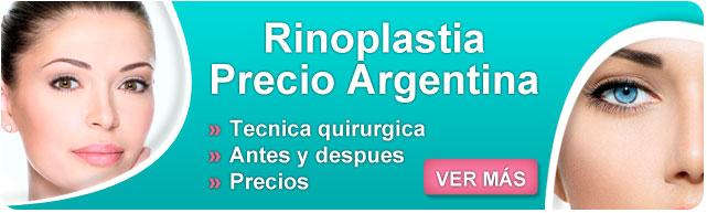 rinoplastia precio, costo de una rinoplastia, rinoseptoplastia postoperatorio, rinoplastia precio argentina, informacion complementaria, rinoplastia argentina precio, rinoplastia precios,