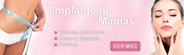 mamoplastia, mastopexia sin implantes, cirugia mamaria, cirugia plastica de senos, pexia mamaria, levantamiento de busto precio, levantamiento de senos antes y despues,