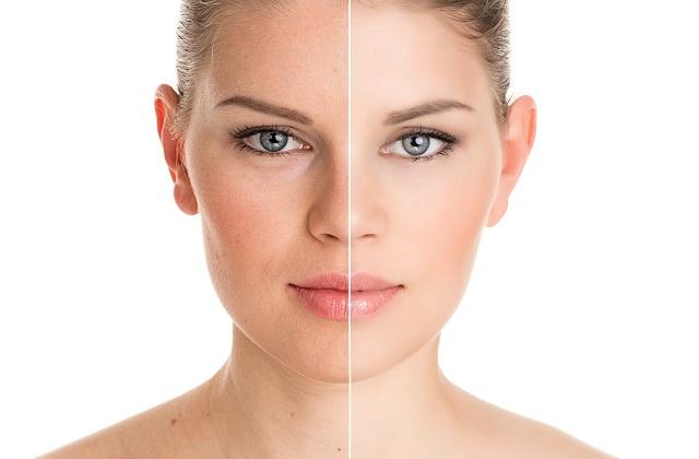 cirujanos plasticos, como combatir las arrugas, fraxface para el rostro